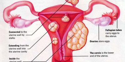 Nzingha lecture 36. Fibroids, What Sisters need to know | Blacknet UK